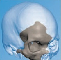 3d-печать в медицине: при помощи 3d-принтера восстановлен череп человека